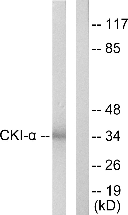CSNK1A1 Antibody (OAAF02277) in HeLa cells using Western Blot
