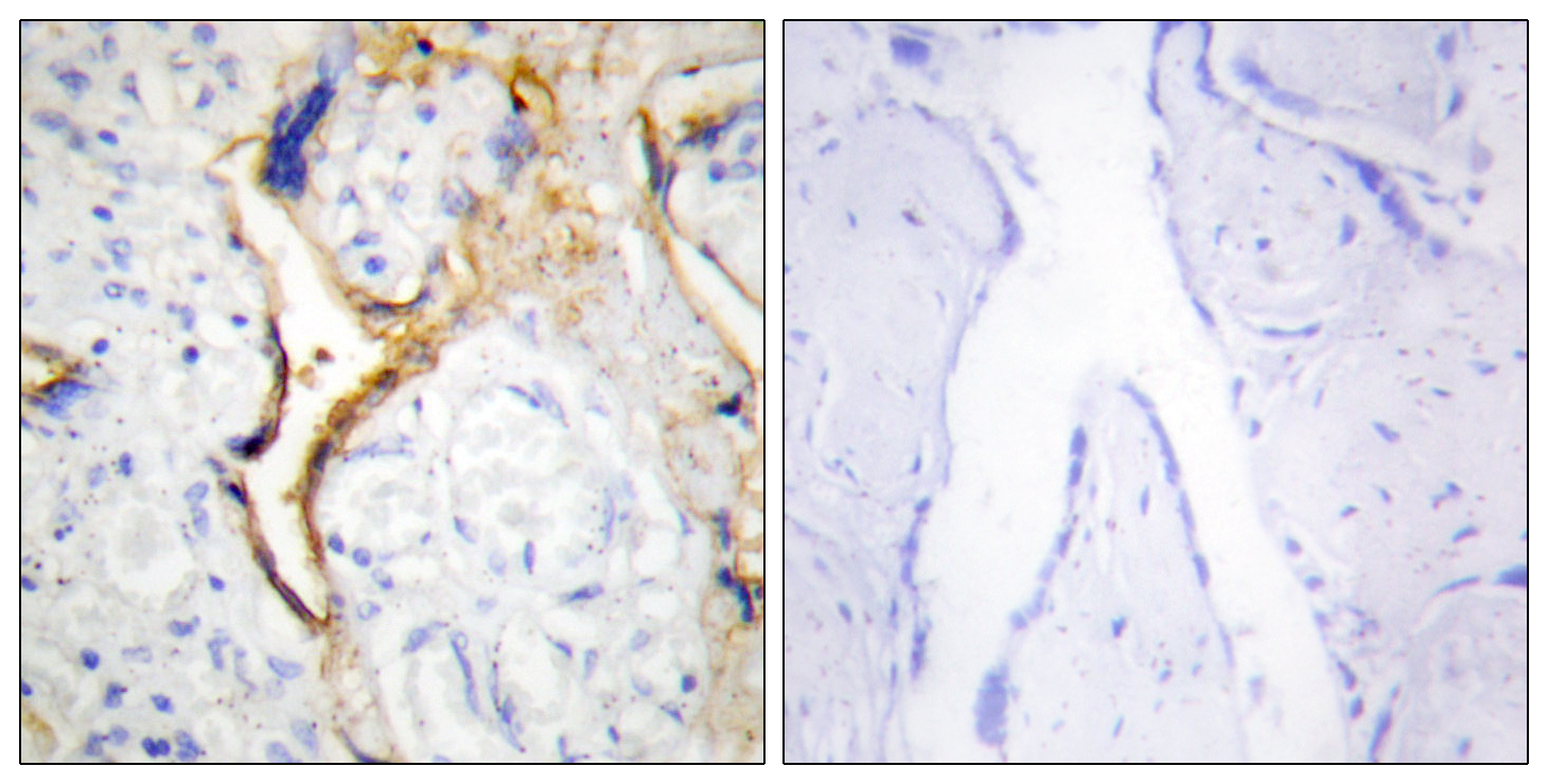 CSNK1E Antibody (OAAF02280) in Human placenta cells using Immunohistochemistry