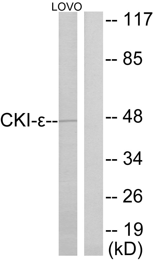 CSNK1E Antibody (OAAF02280) in LOVO cells using Western Blot