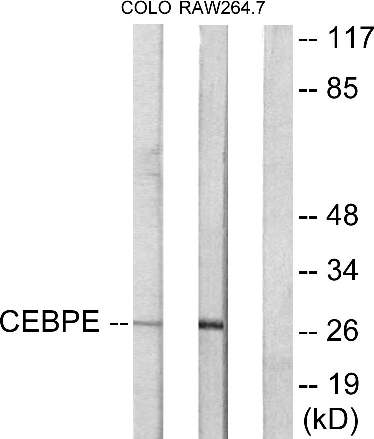 CEBPD Antibody (OAAF02281) in LOVO, RAW264.7 cells using Western Blot