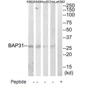 BCAP31 Antibody (OAAF02294) in HeLa, HuvEc, A549, K562 cells using Western Blot