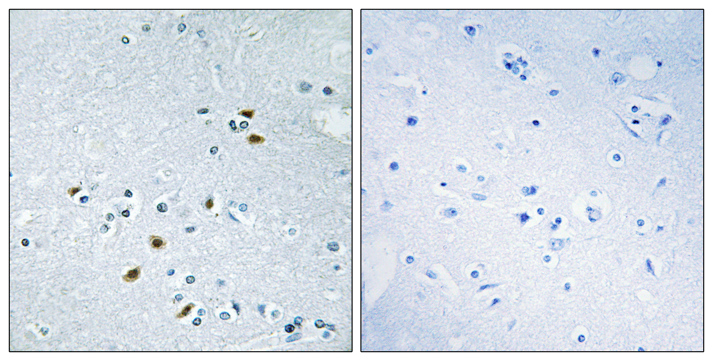 BRCA2 Antibody (OAAF02295) in Human brain cells using Immunohistochemistry