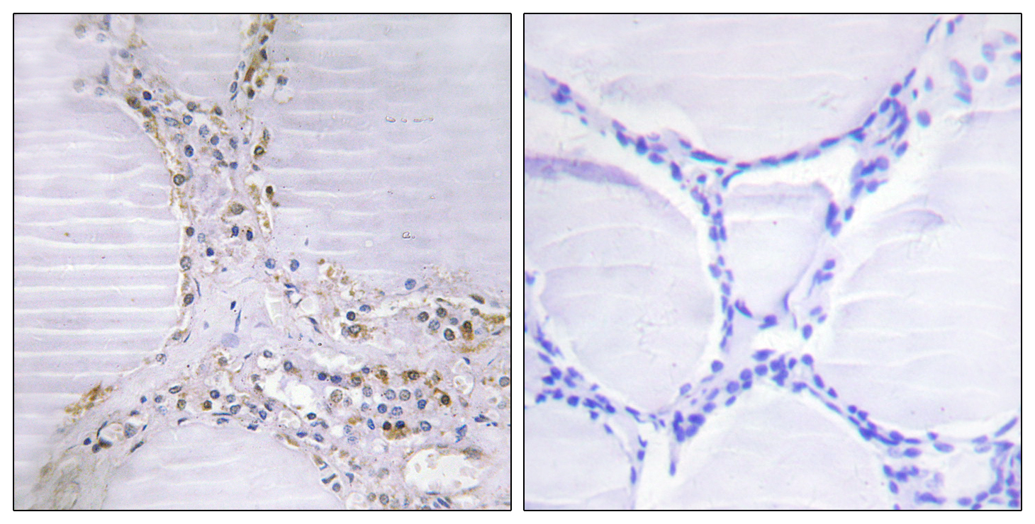 BMX Antibody (OAAF02297) in Human thyroid gland cells using Immunohistochemistry