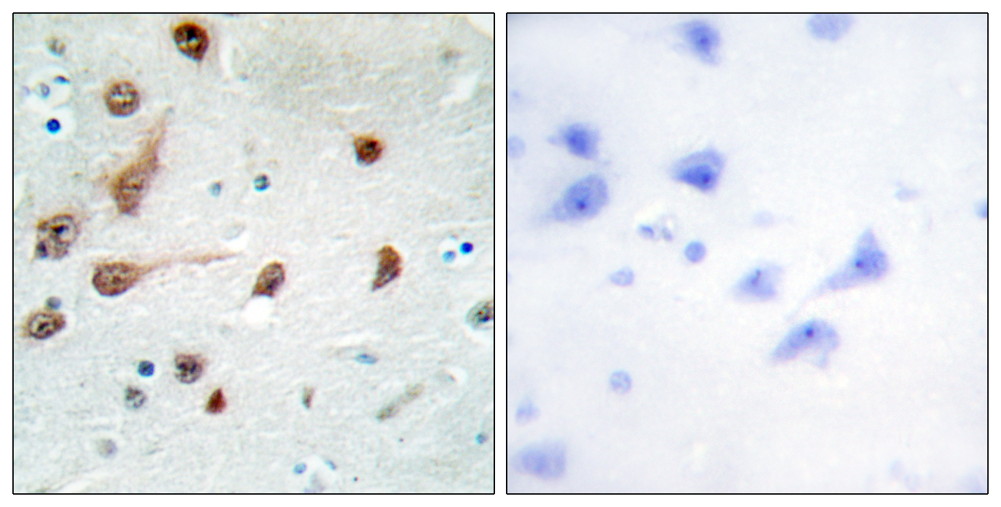 ADAR Antibody (OAAF02324) in Human brain cells using Immunohistochemistry
