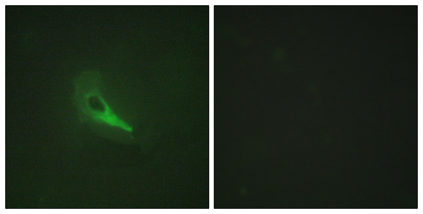 AKAP12 Antibody (OAAF02362) in HeLa cells using Immunofluorescence
