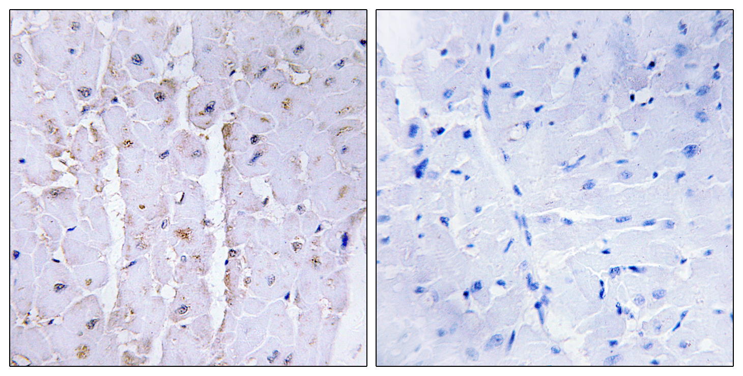 AKAP13 Antibody (OAAF02387) in Human lung carcinoma cells using Immunohistochemistry