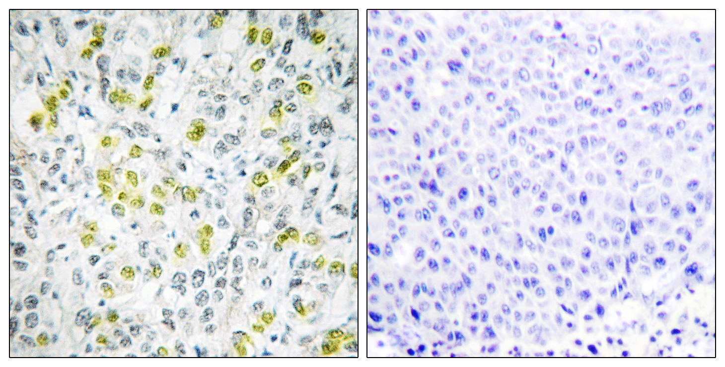 CHD4 Antibody (OAAF02436) in Human liver carcinoma cells using Immunohistochemistry