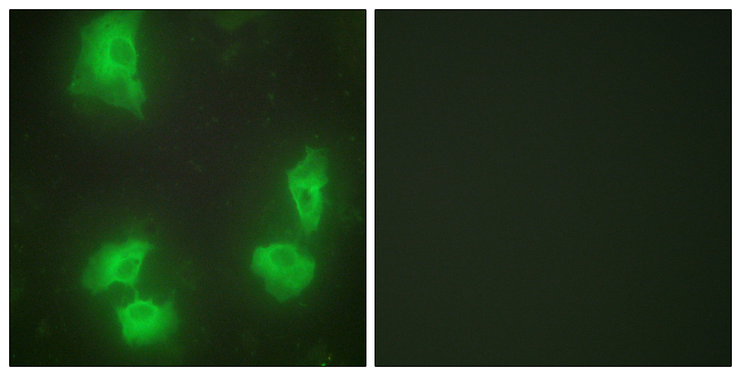 CDK5R1 Antibody (OAAF02442) in HeLa cells using Immunofluorescence