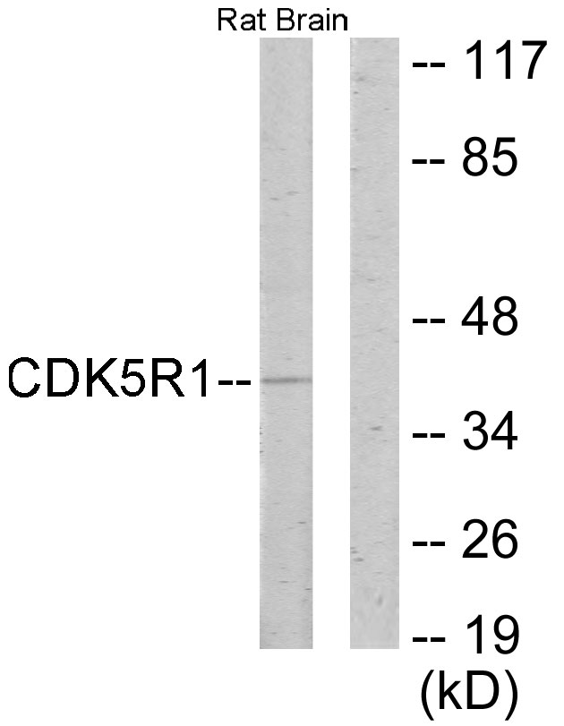CDK5R1 Antibody (OAAF02442) in Rat brain cells using Western Blot