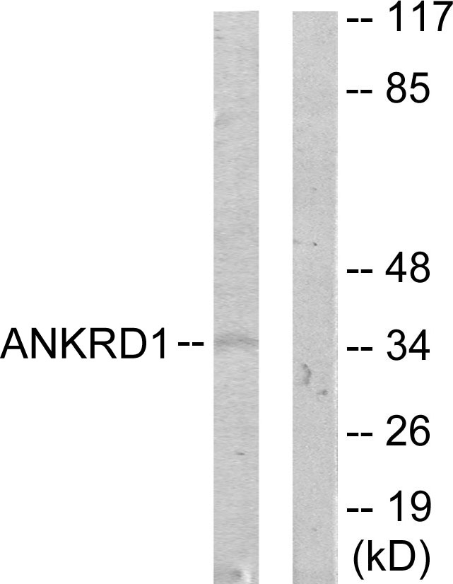ANKRD1 Antibody (OAAF02446) in COLO205 cells using Western Blot
