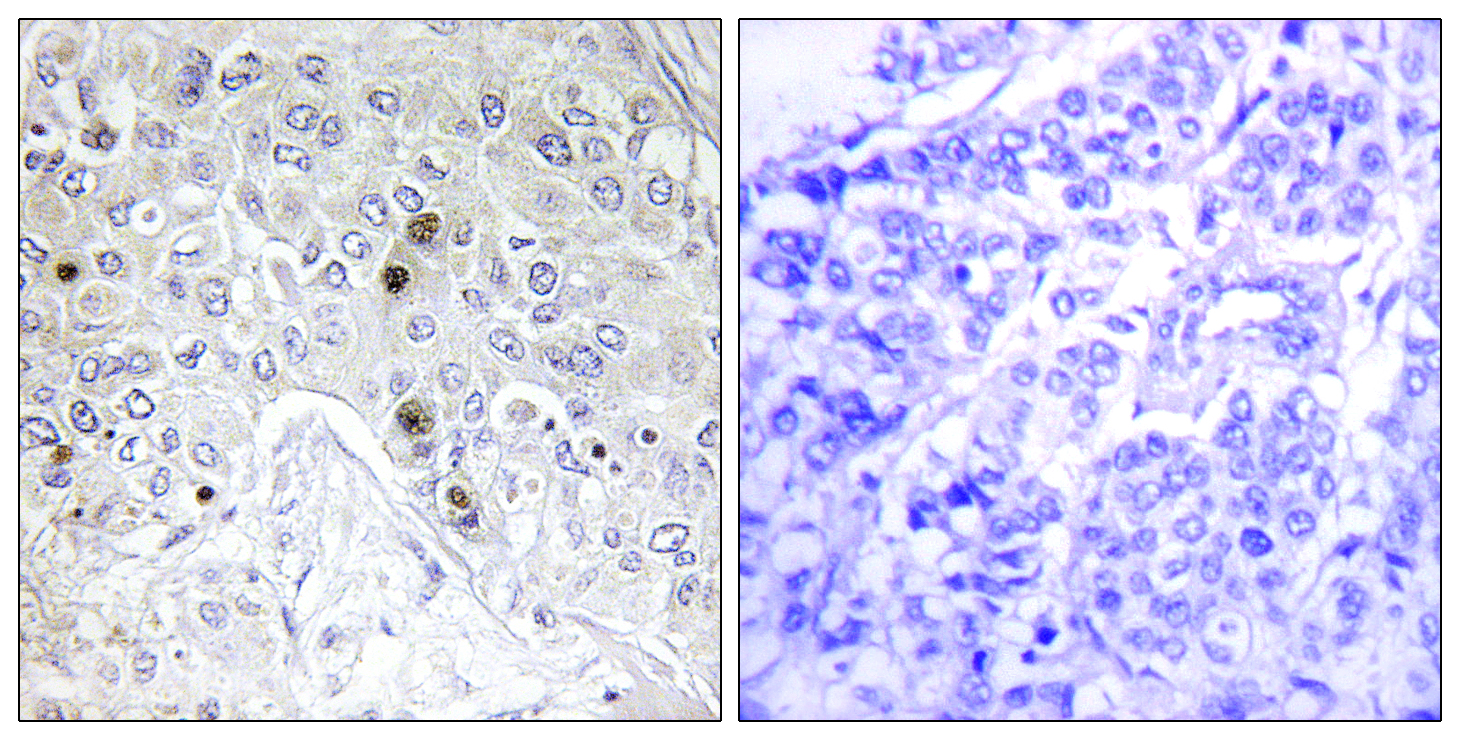 BATF Antibody (OAAF02470) in Human breast carcinoma cells using Immunohistochemistry