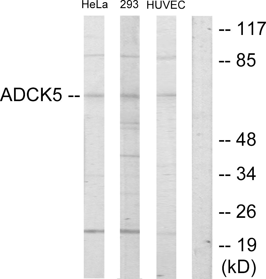 ADCK5 Antibody (OAAF02483) in HeLa, 293, HUVEC cells using Western Blot