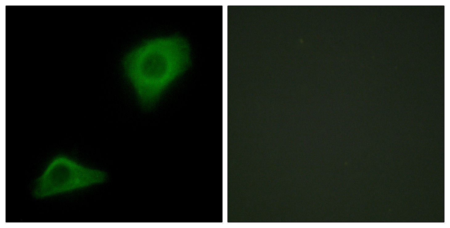 AGPAT9 Antibody (OAAF02485) in HepG2 cells using Immunofluorescence