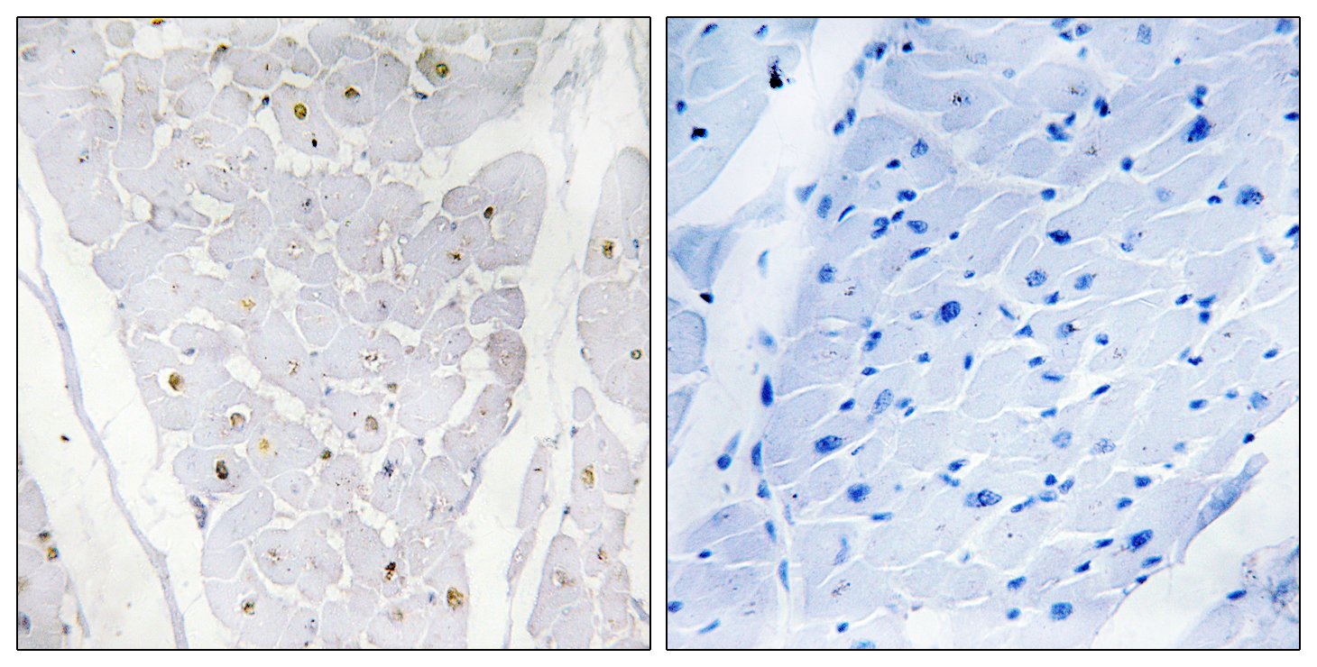 ALPK2 Antibody (OAAF02521) in Human heart cells using Immunohistochemistry