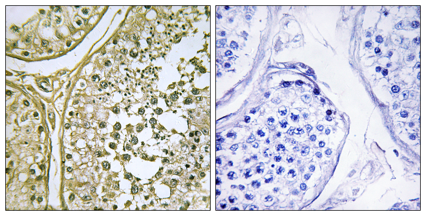CSNK1A1 Antibody (OAAF02545) in Human testis cells using Immunohistochemistry