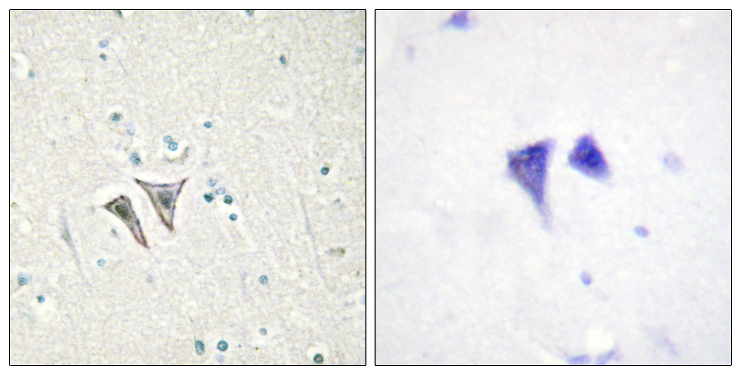 ACVR1C Antibody (OAAF02550) in Human brain cells using Immunohistochemistry