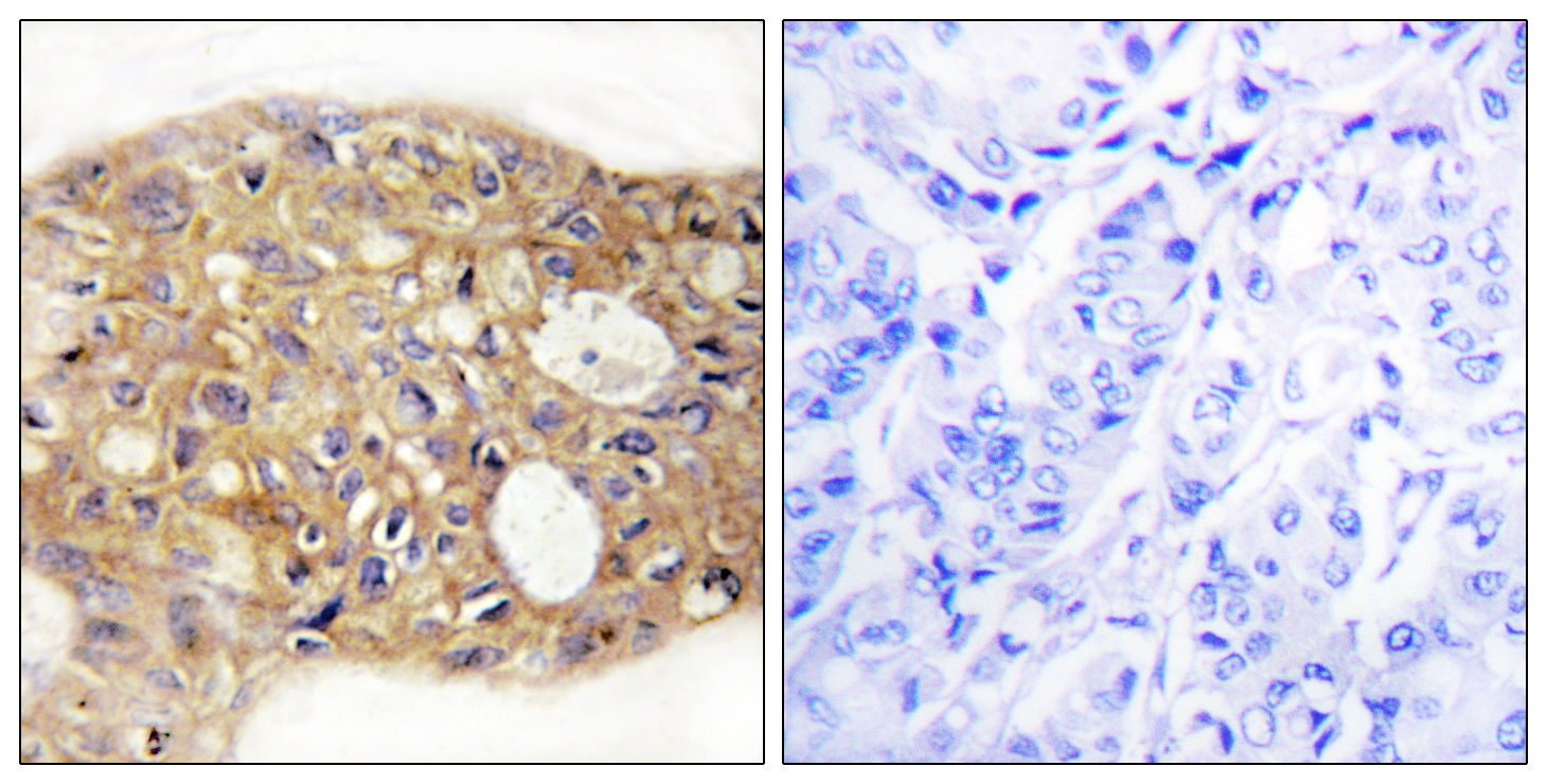 AGR3 Antibody (OAAF02564) in Human breast carcinoma cells using Immunohistochemistry