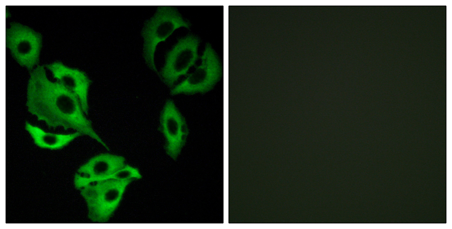 ADCK4 Antibody (OAAF02611) in A549 cells using Immunofluorescence
