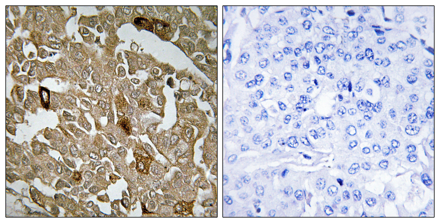 BTBD6 Antibody (OAAF02618) in Human breast carcinoma cells using Immunohistochemistry