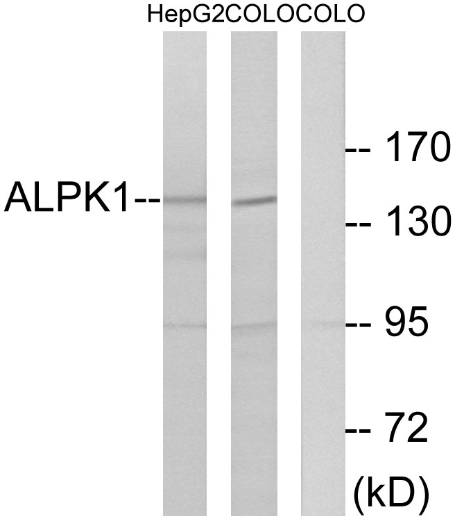 ALPK1 Antibody (OAAF02630) in HepG2, COLO cells using Western Blot