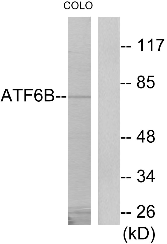 ATF6B Antibody (OAAF02637) in COLO205 cells using Western Blot