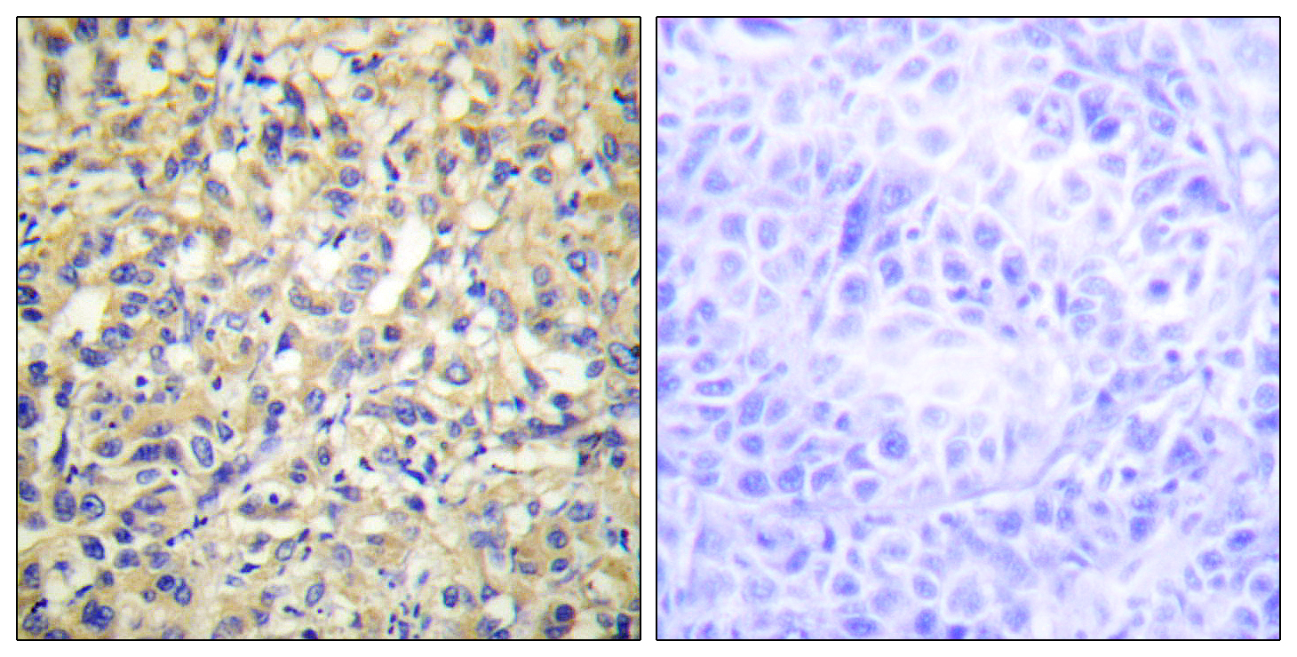 DUSP9 Antibody (OAAF02638) in Human liver carcinoma cells using Immunohistochemistry