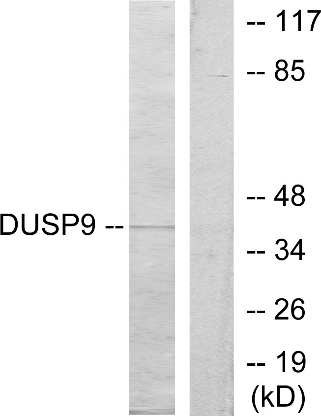 DUSP9 Antibody (OAAF02638) in HeLa cells using Western Blot