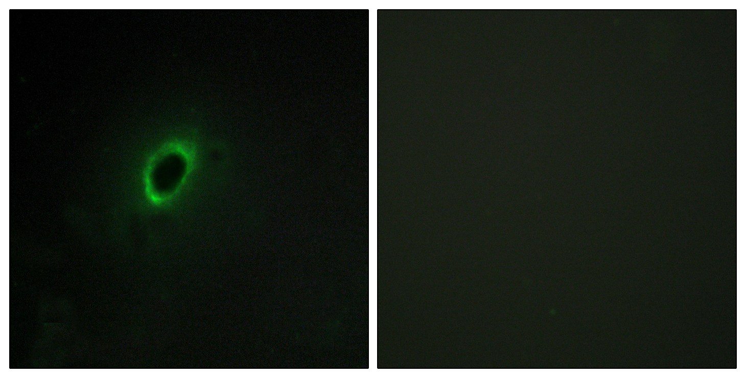 BEGAIN Antibody (OAAF02647) in HeLa cells using Immunofluorescence