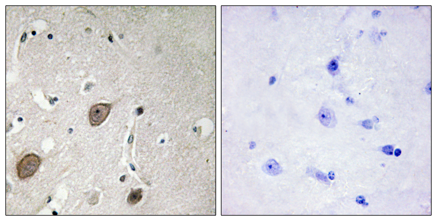 BEGAIN Antibody (OAAF02647) in Human breast carcinoma cells using Immunohistochemistry