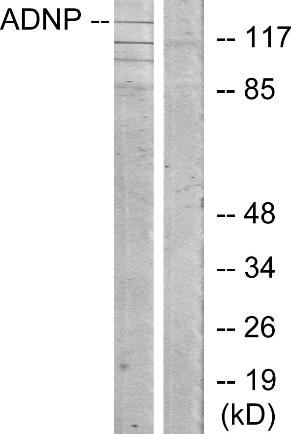 ADNP Antibody (OAAF02672) in LOVO cells using Western Blot