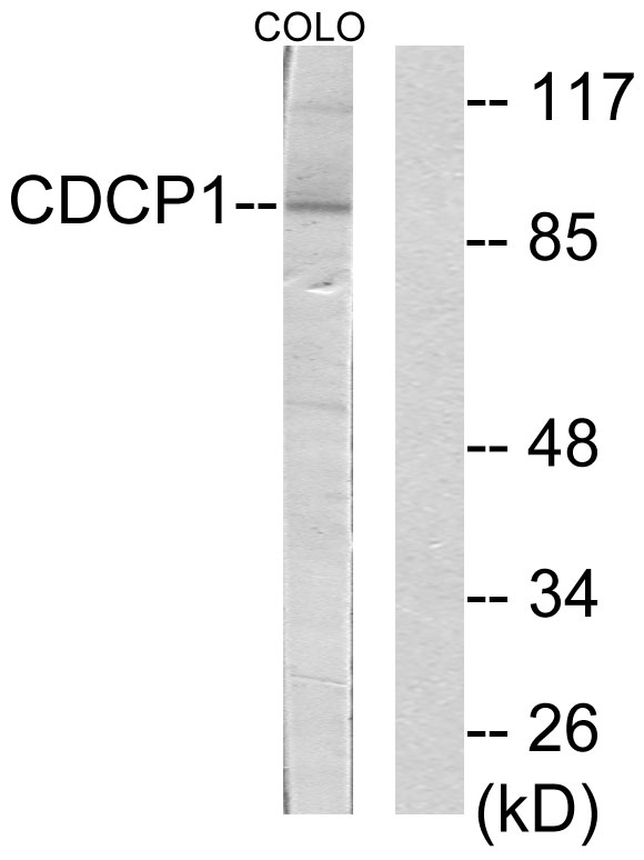 CDCP1 Antibody (OAAF02677) in COLO205 cells using Western Blot