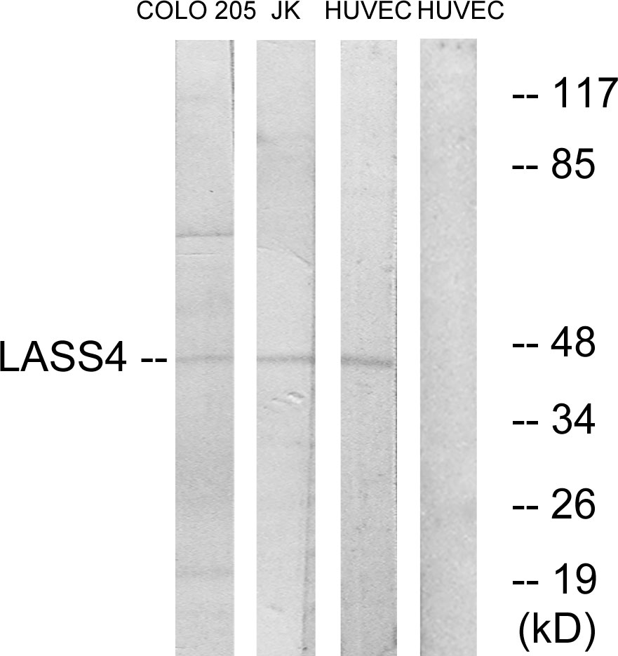 CERS4 Antibody (OAAF02683) in COLO, Jurkat, HUVEC cells using Western Blot