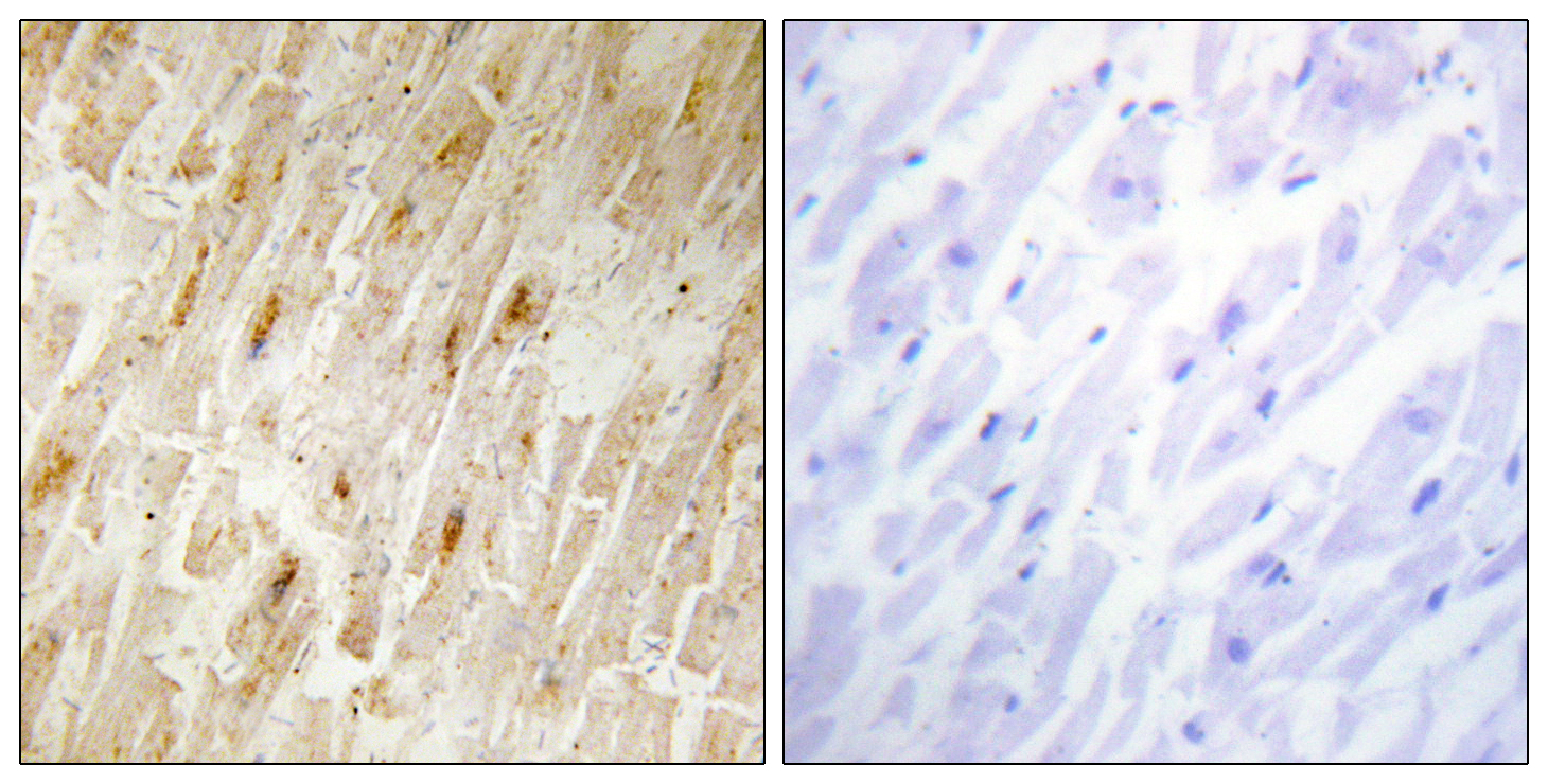 AKIP1 Antibody (OAAF02691) in Human heart cells using Immunohistochemistry