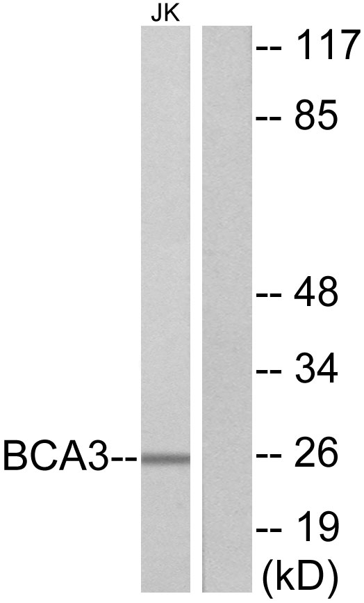 AKIP1 Antibody (OAAF02691) in Jurkat cells using Western Blot