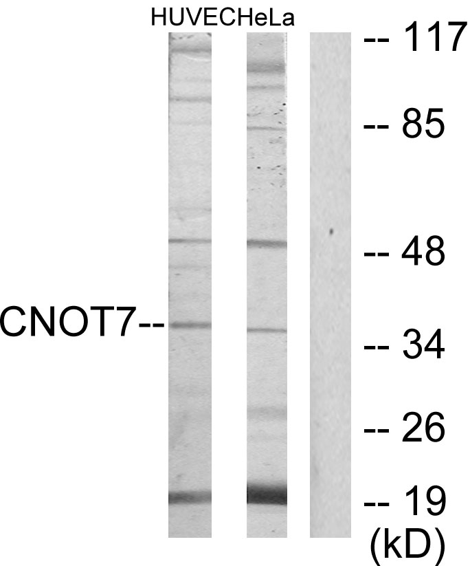 CNOT7 Antibody (OAAF02733) in HUVEC, HeLa cells using Western Blot