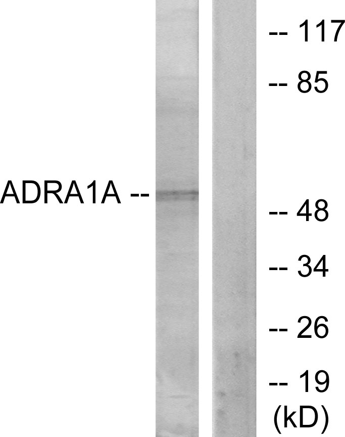 ADRA1A Antibody (OAAF02810) in lOVO cells using Western Blot