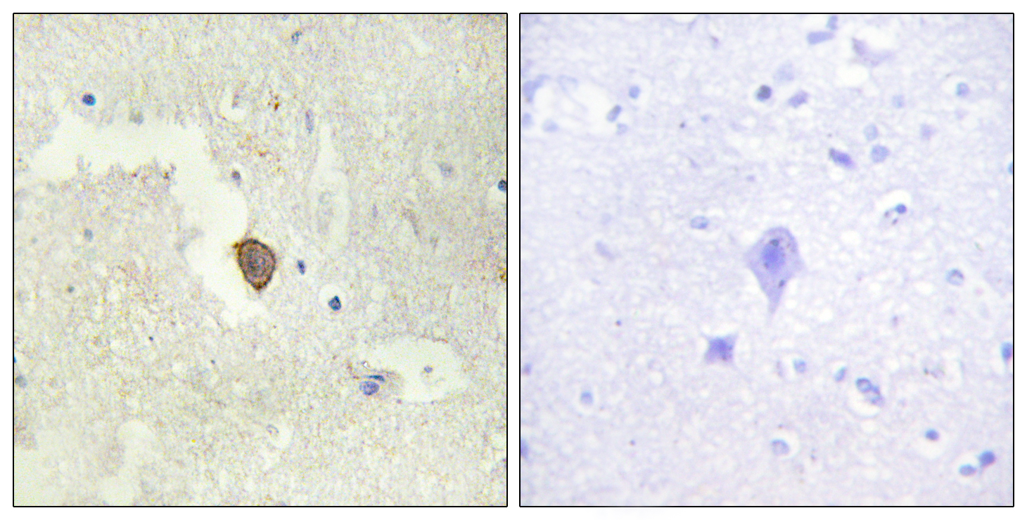 ADCY7 Antibody (OAAF02816) in Human brain cells using Immunohistochemistry