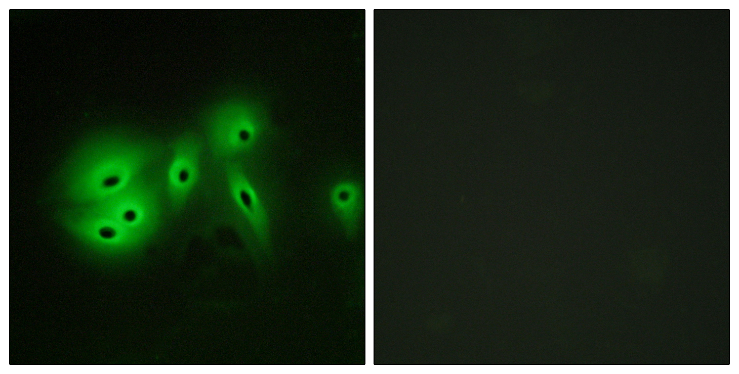 ADCY8 Antibody (OAAF02817) in A549 cells using Immunofluorescence