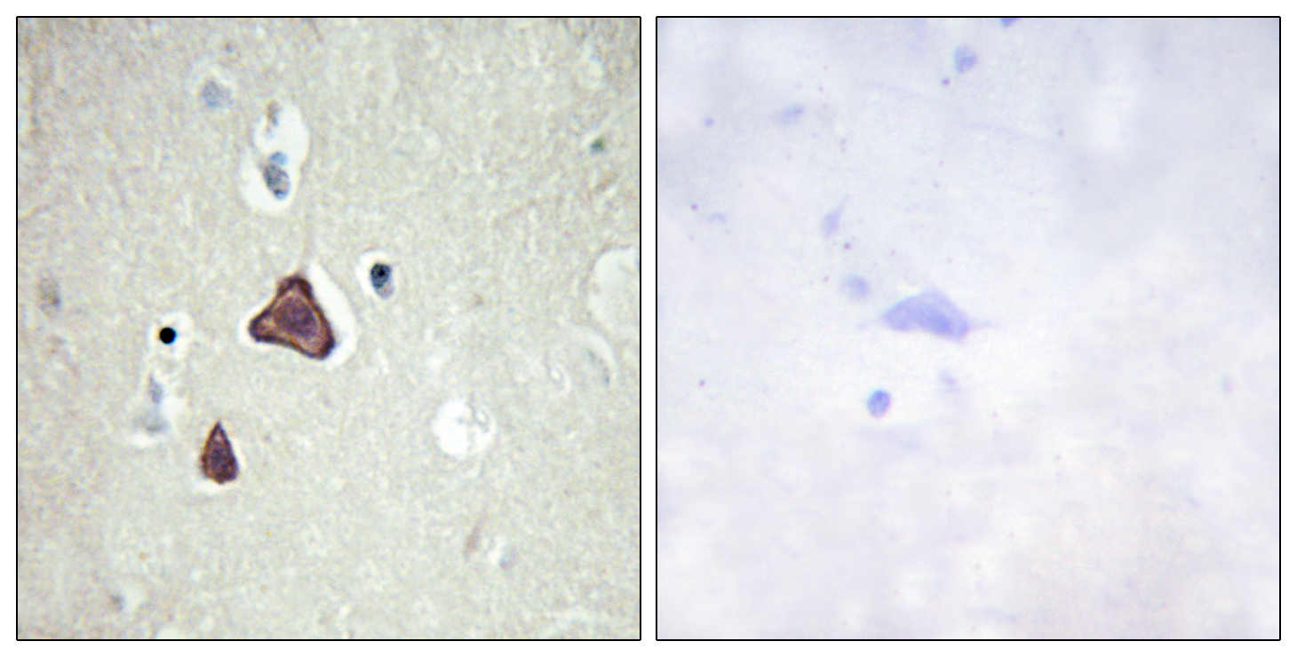 ADCY8 Antibody (OAAF02817) in Human brain cells using Immunohistochemistry