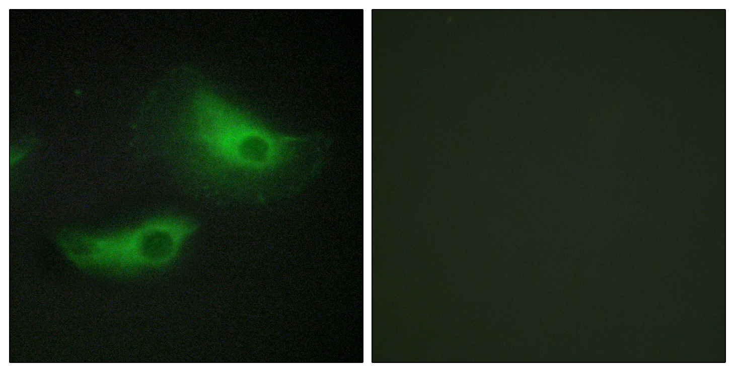 ADD2 Antibody (OAAF02818) in HeLa cells using Immunofluorescence