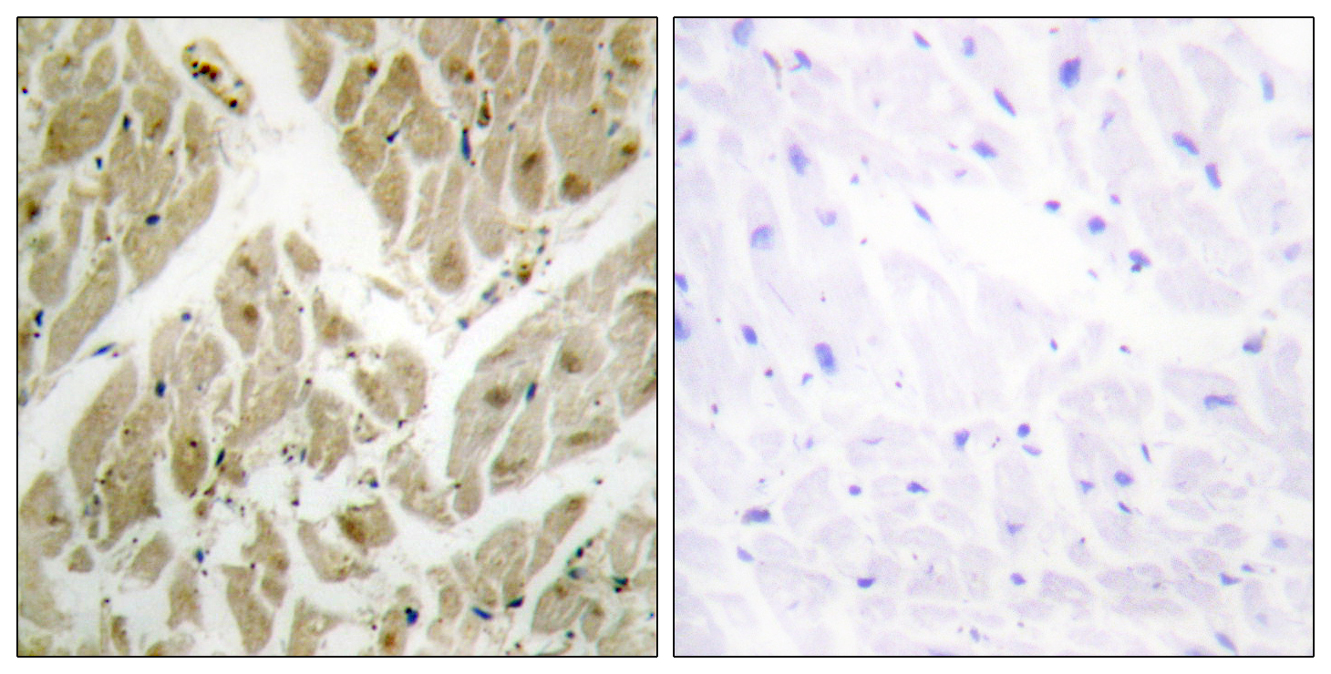 API5 Antibody (OAAF02826) in Human heart cells using Immunohistochemistry