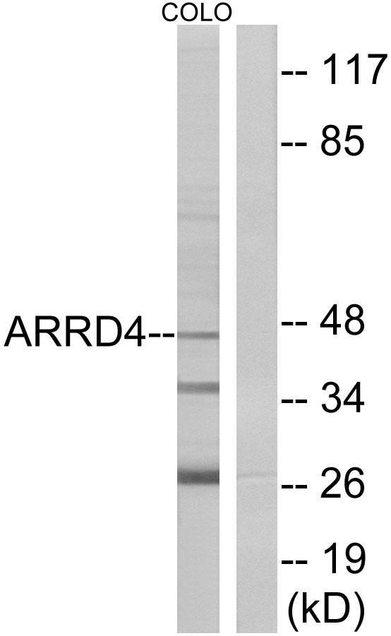 ARRDC4 Antibody (OAAF02832) in COLO cells using Western Blot
