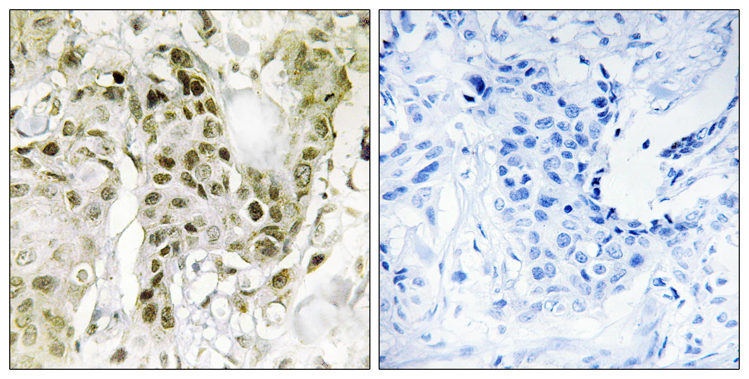 BCOR Antibody (OAAF02835) in Human breast carcinoma cells using Immunohistochemistry