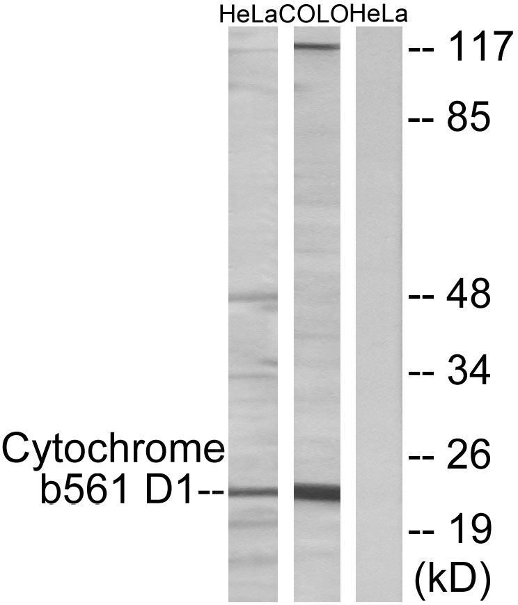 CYB561D1 Antibody (OAAF02838) in HeLa, COLO cells using Western Blot