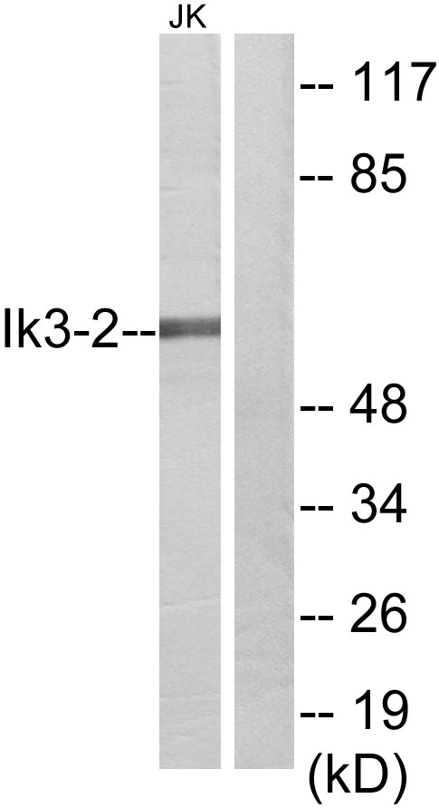 CABLES2 Antibody (OAAF02841) in Jurkat cells using Western Blot