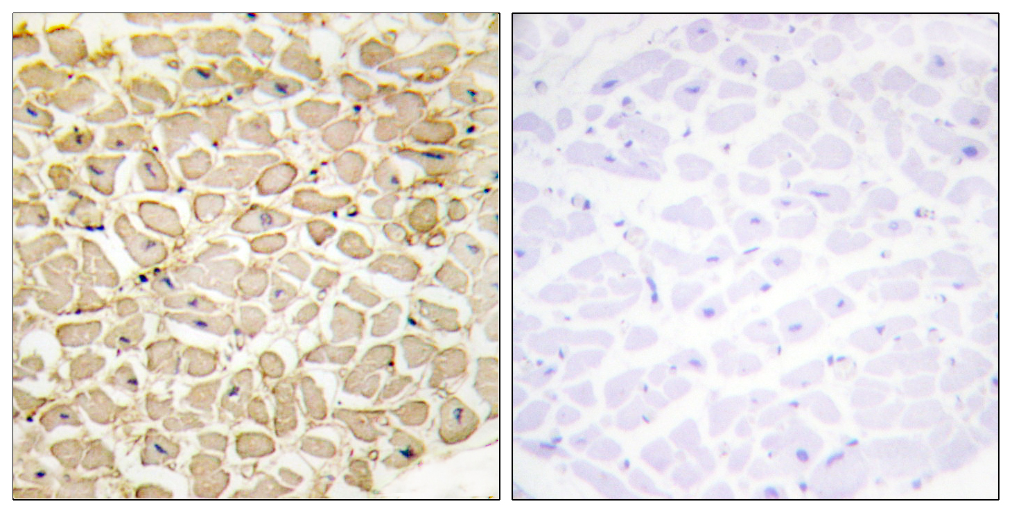 CDH13 Antibody (OAAF02844) in Human heart cells using Immunohistochemistry