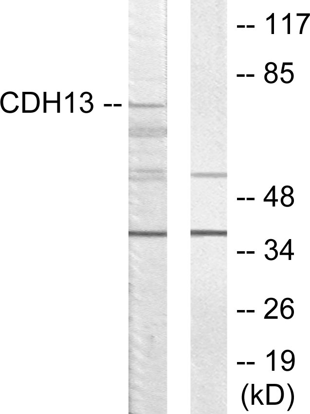 CDH13 Antibody (OAAF02844) in LOVO cells using Western Blot
