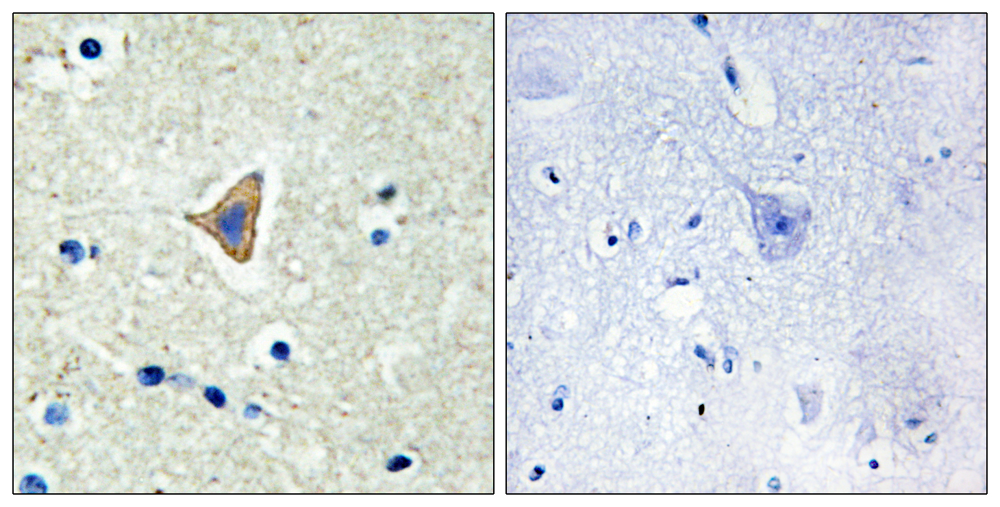 CDH20 Antibody (OAAF02849) in Human brain cells using Immunohistochemistry