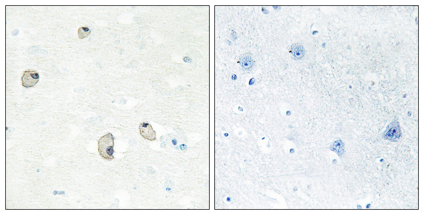CDH22 Antibody (OAAF02850) in Human brain cells using Immunohistochemistry
