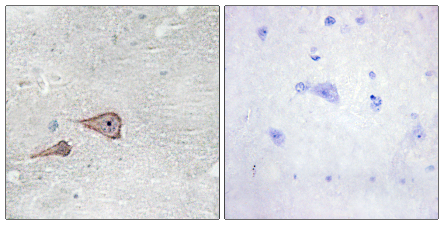 CDH3 Antibody (OAAF02855) in Human brain cells using Immunohistochemistry